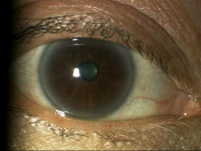 eyeschk03