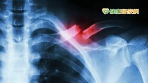 肋骨骨折X光為何沒有看出來?