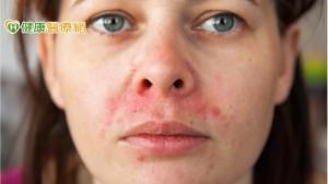 換季容易引發酒槽皮膚炎