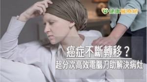 癌症不斷轉移? 超分次高效電腦刀助解決病灶
