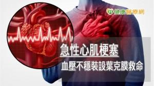 急性心肌梗塞併發二尖瓣腱索斷裂 葉克膜成功救回一命