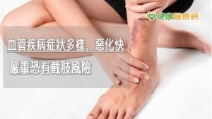 47歲女左下肢腫脹紫黑 竟是左髂靜脈壓迫症引起