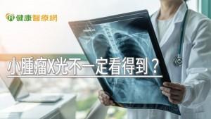 小腫瘤X光不一定看得到? 專科醫師解析原因