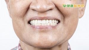 長者也要做牙齒矯正? 牙醫師解惑