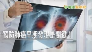預防肺癌早期發現是關鍵! 成大醫院員工607名篩檢21人確診