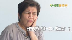 臼齒劈裂「缺一顆,做三顆」? 自體齒移植解決缺牙問題