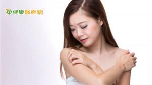 長期飽受異位性皮膚炎困擾 生物製劑治療助改善